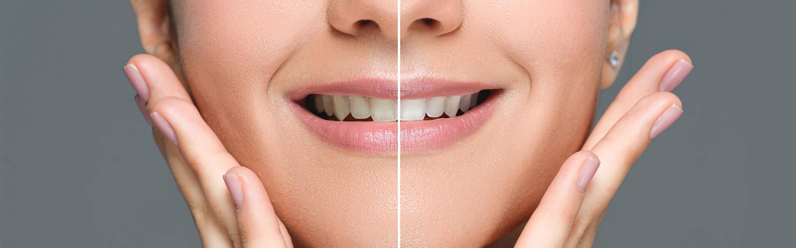 Före & efter en tandblekning