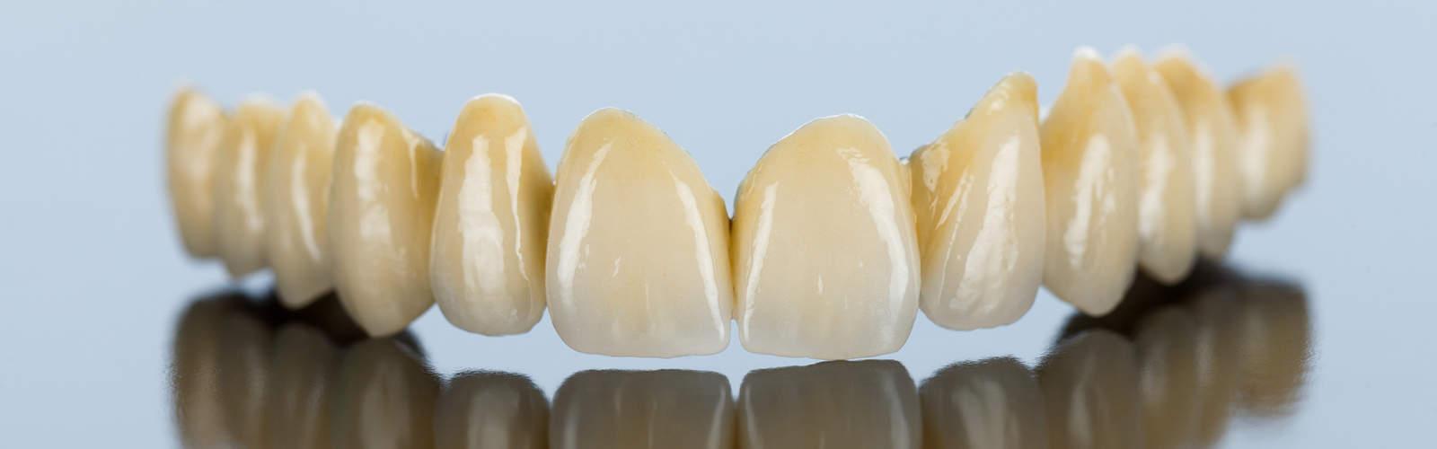 En tandbro av keramik